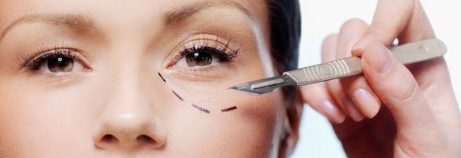 Chirurgia plastica, sempre più donne si rifanno ma 2 su 3 sono già belle