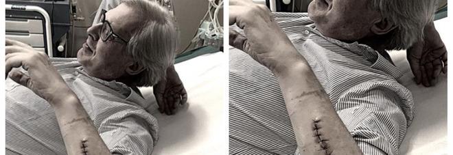 """Vittorio Sgarbi, la foto sul lettino dell'ospedale fa preoccupare i fan: """"Cucito a mano..."""""""
