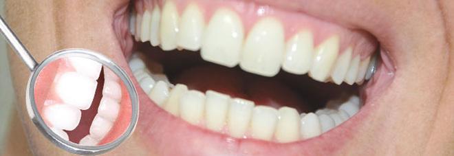 Dimmi quanti denti hai perso e ti dirò quanto vivrai ancora