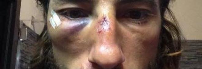 Il viso di  Vittorio Brumotti dopo un pestaggio (foto d'archivio)