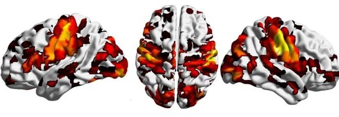"""Trovata nel cervello la """"culla"""" della schizofrenia: da scienziati italiani la svolta nella ricerca"""