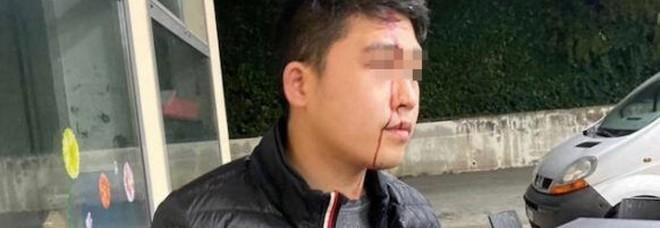 Coronavirus, ragazzo di origine cinese aggredito in Veneto: «Mi hanno spaccato una bottiglia in faccia»