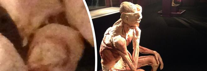 """Real Bodies, visitatore stacca l'alluce a un cadavere della mostra: """"Voleva un souvenir macabro"""""""