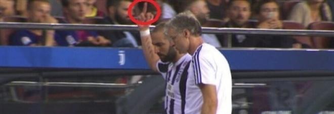 Gestaccio Higuain dopo la sconfitta