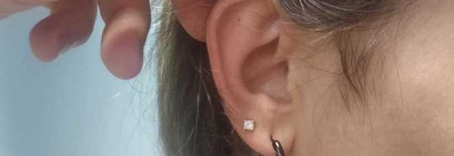 Infezione al timpano, l'otorino gli ritrova nell'orecchio l'orecchino perso un mese prima