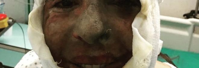 Gessica Notaro, la prima foto dopo l'aggressione con l'acido: