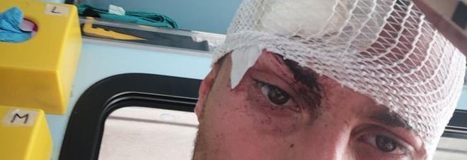 La denuncia: «Sette punti di sutura per aver difeso un cane» I vigili urbani: «Nessun maltrattamento