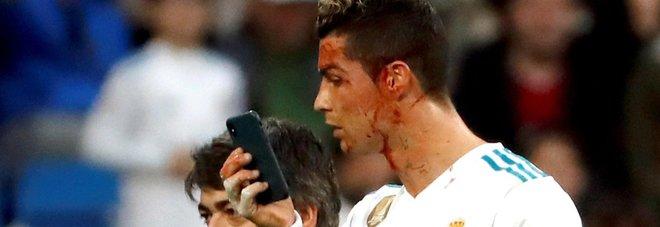 Ronaldo segna di testa ma si ferisce: selfie per controllare i danni