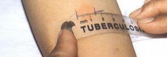 Tubercolosi a scuola, la Ulss2 decide test di massa per tutti: 400 coinvolti