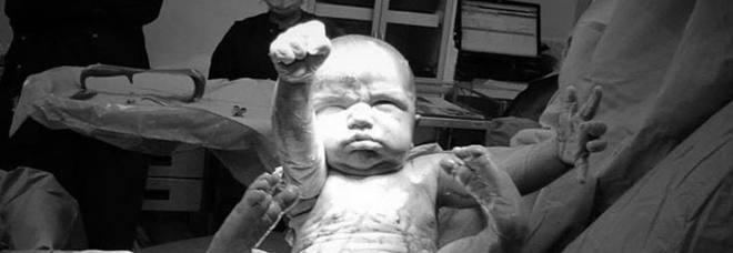 Il bimbo nasce con la posa da Superman: la foto del piccolo fa il giro del mondo