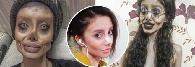 La vera storia di Sahar, la ragazza che voleva somigliare a Angelina Jolie