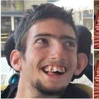 """• Matteo: """"Non andare a morire, noi disabili portiamo luce"""""""