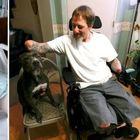Il cane domestico lo lecca, il padrone contrae una grave infezione: braccia e gambe amputate