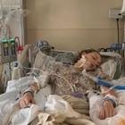 Si ammala ai polmoni fumando la sigaretta, studentessa 18enne in coma